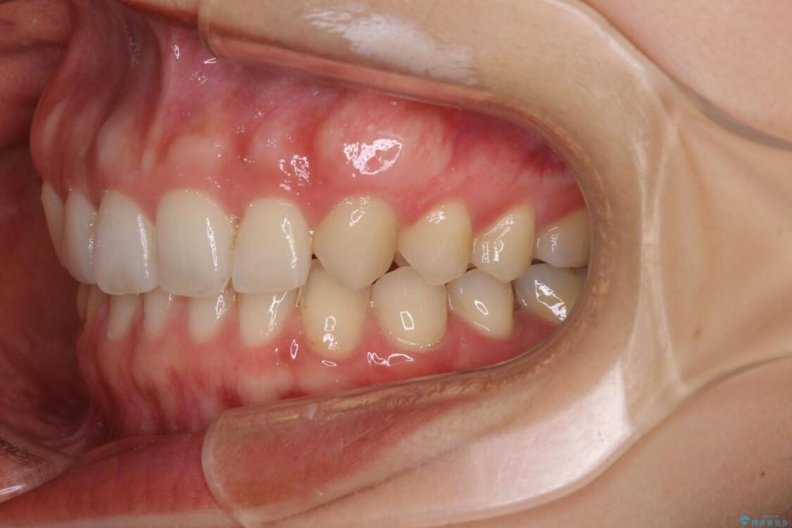 隙間だらけの歯列をきれいに インビザライン矯正とセラミック補綴治療 治療後画像