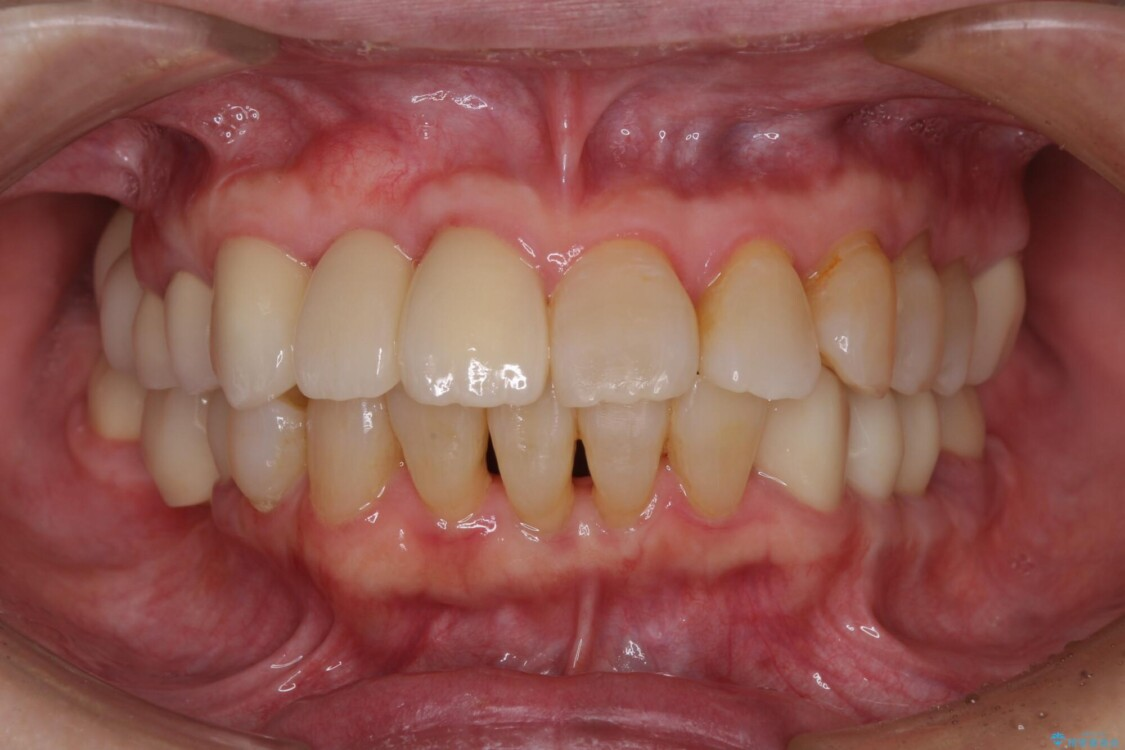 歯周病改善のための総合歯科治療 アフター