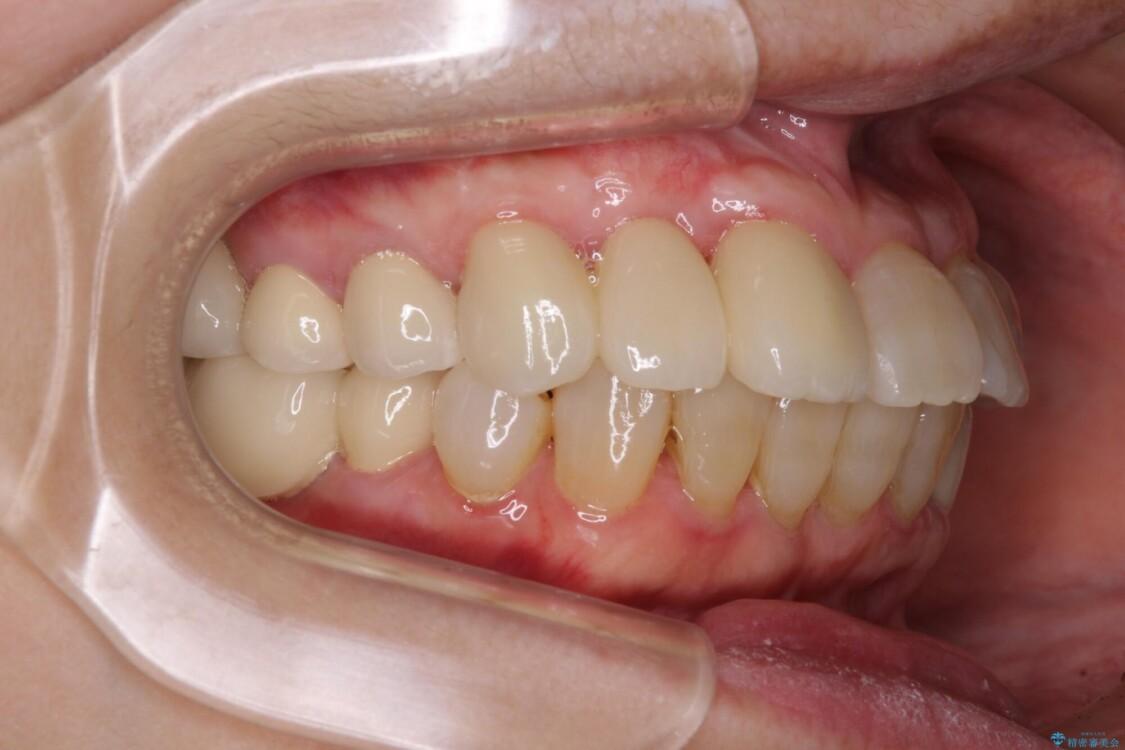 歯周病改善のための総合歯科治療 治療後画像