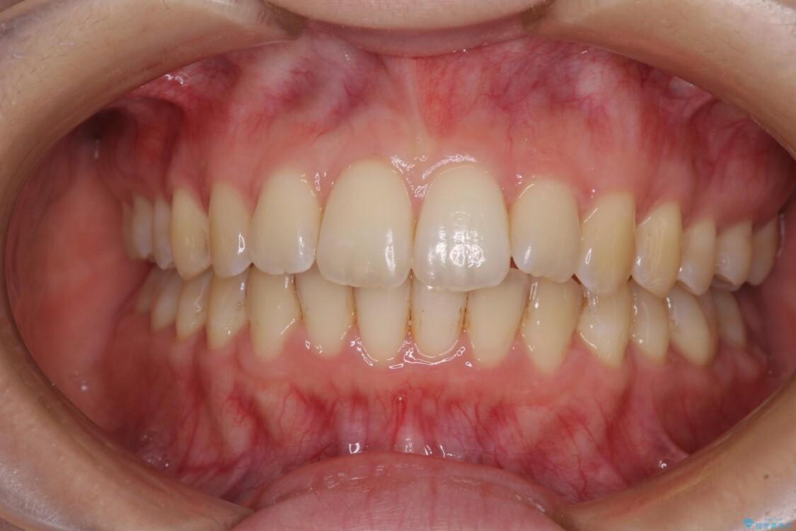 前歯のデコボコを解消 インビザラインによる矯正治療 アフター
