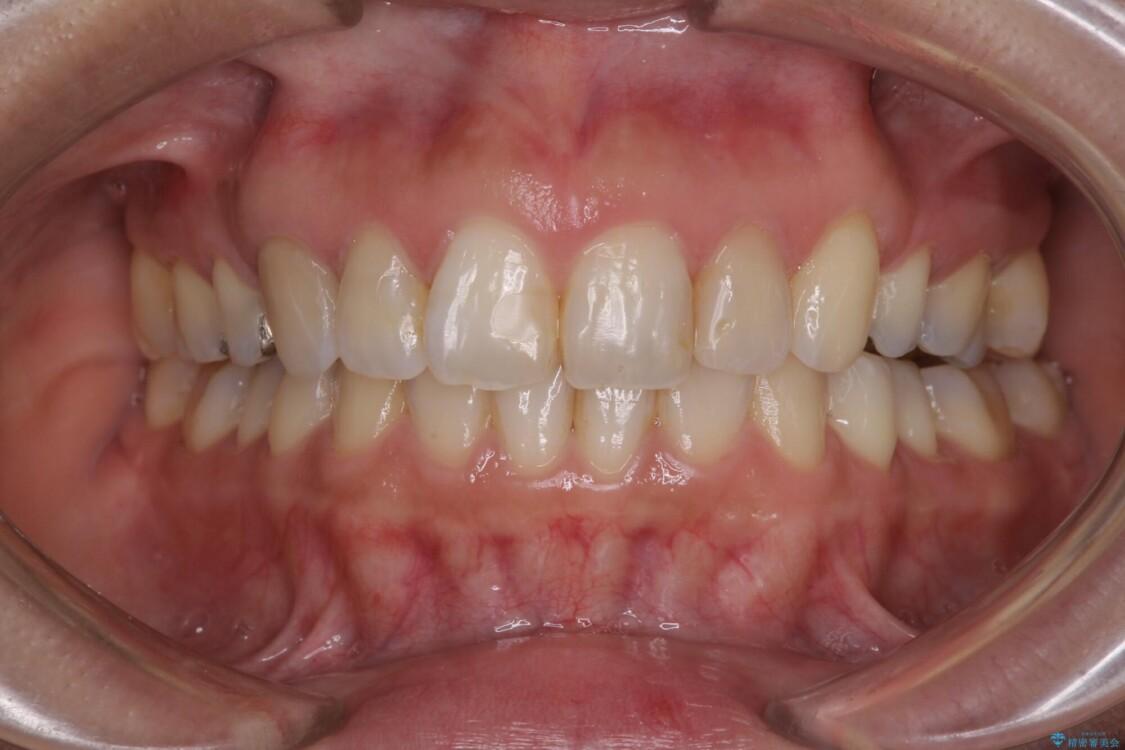 前歯の突出を軽減 インビザラインによる抜歯矯正 アフター