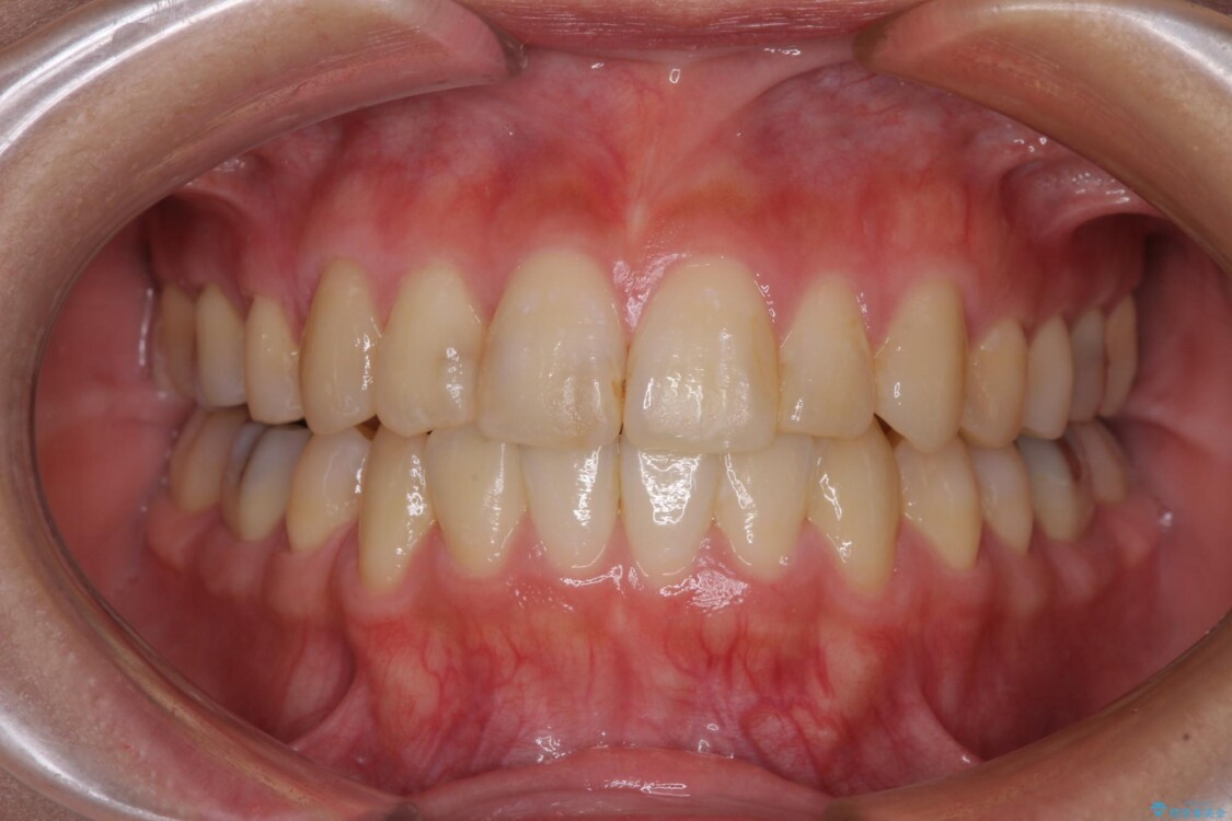 上下の八重歯を治したい インビザラインと補助装置を用いた抜歯治療 アフター