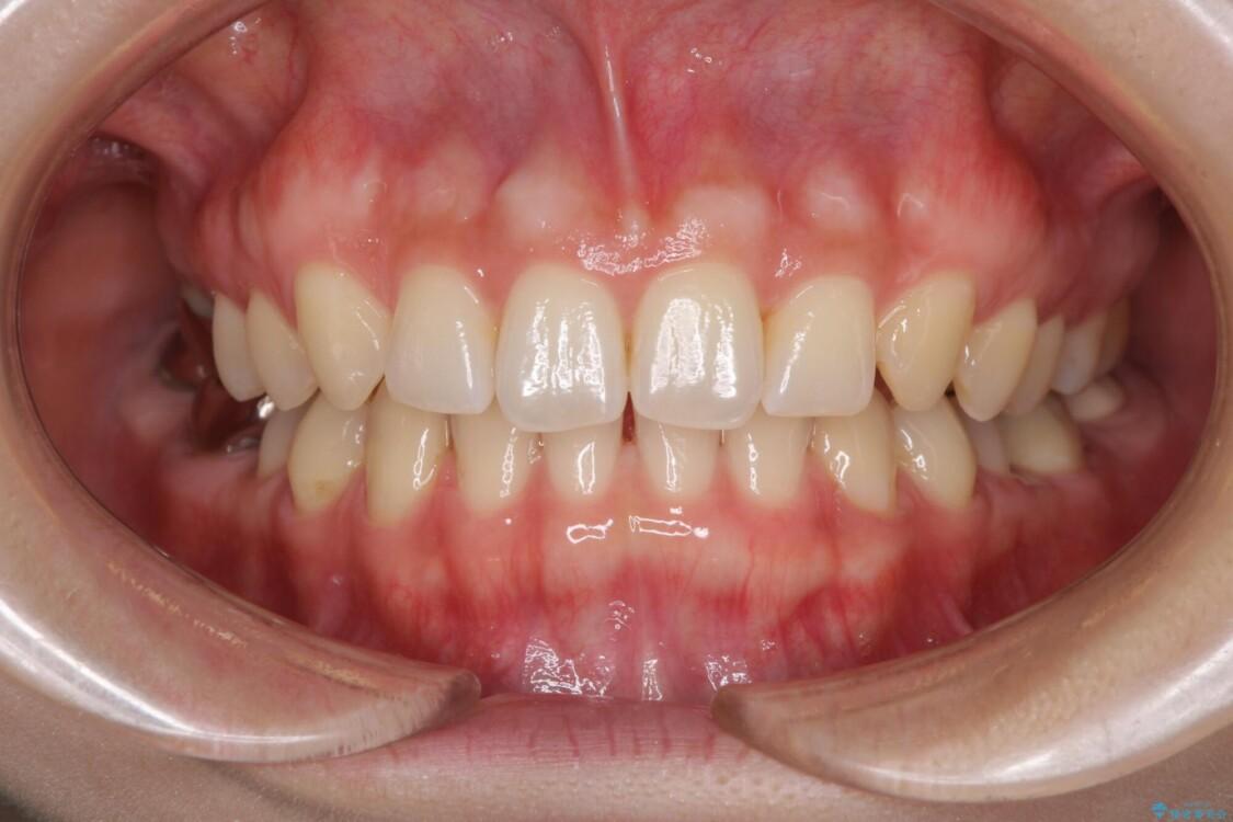 隙間の空いた前歯を治したい インビザライン矯正治療 アフター