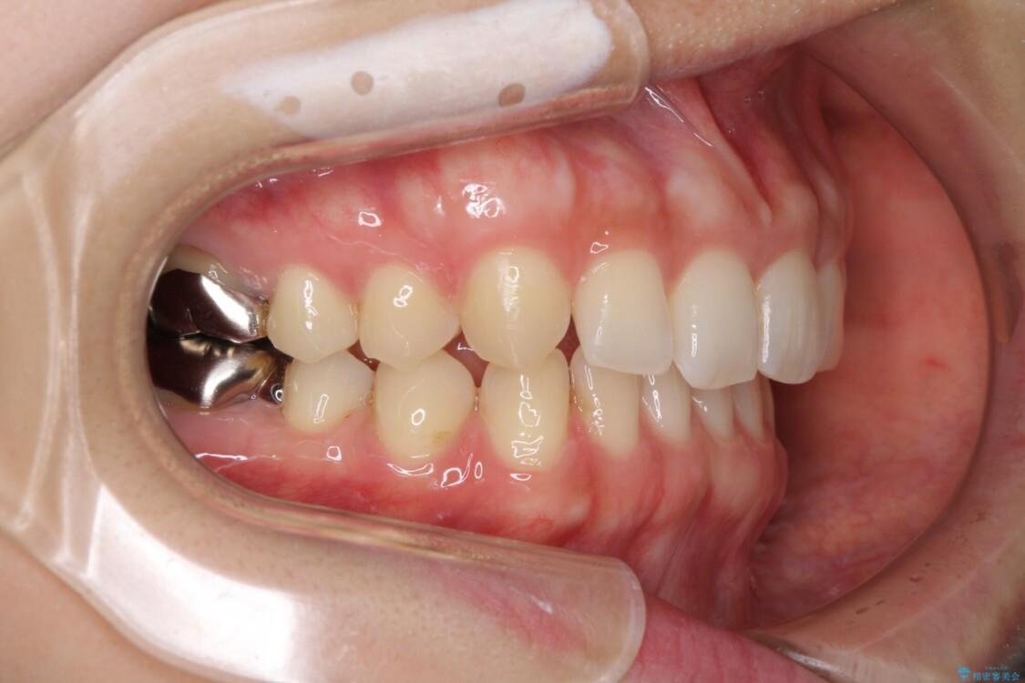 隙間だらけの歯列をきれいに インビザライン矯正とセラミック補綴治療 治療途中画像