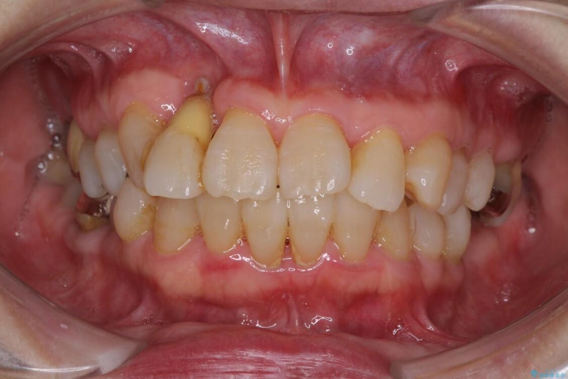 歯周病改善のための総合歯科治療 ビフォー