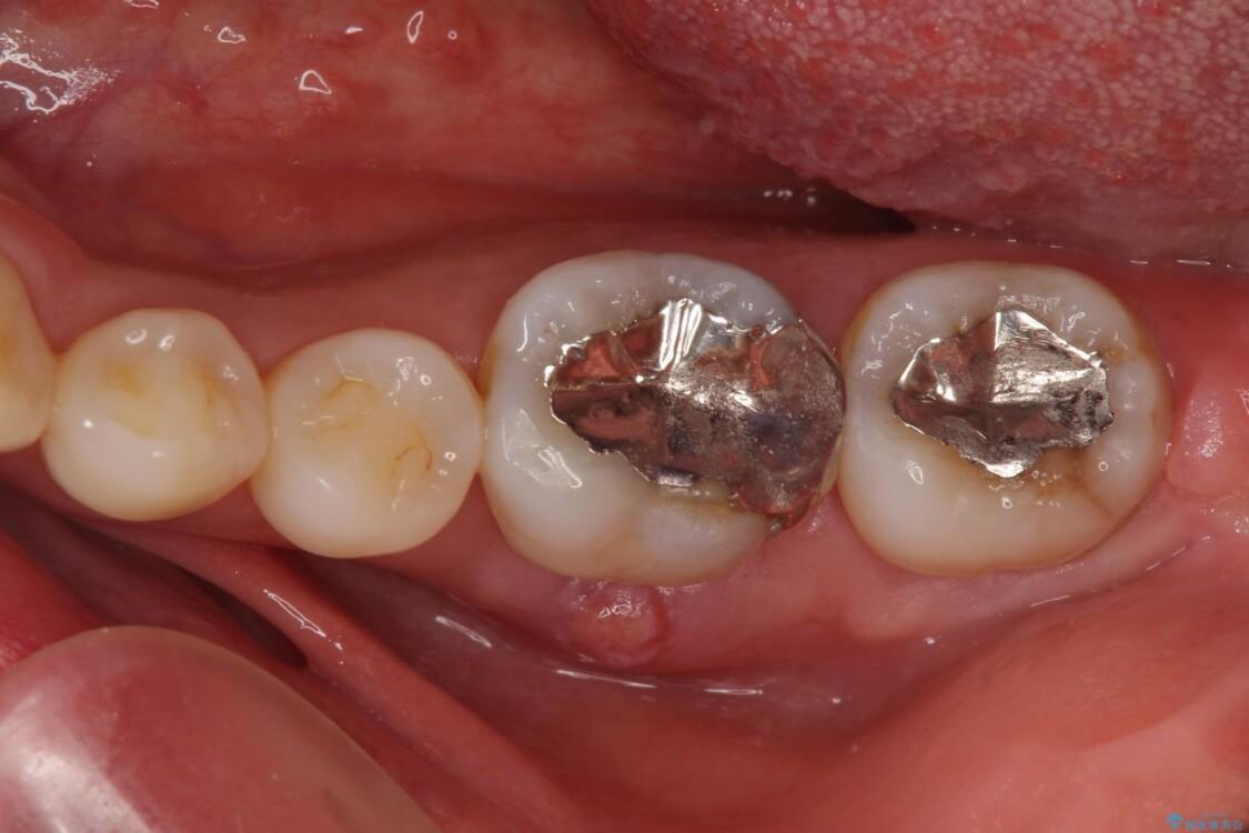 奥歯の虫歯 オールセラミッククラウンによる補綴治療 治療前