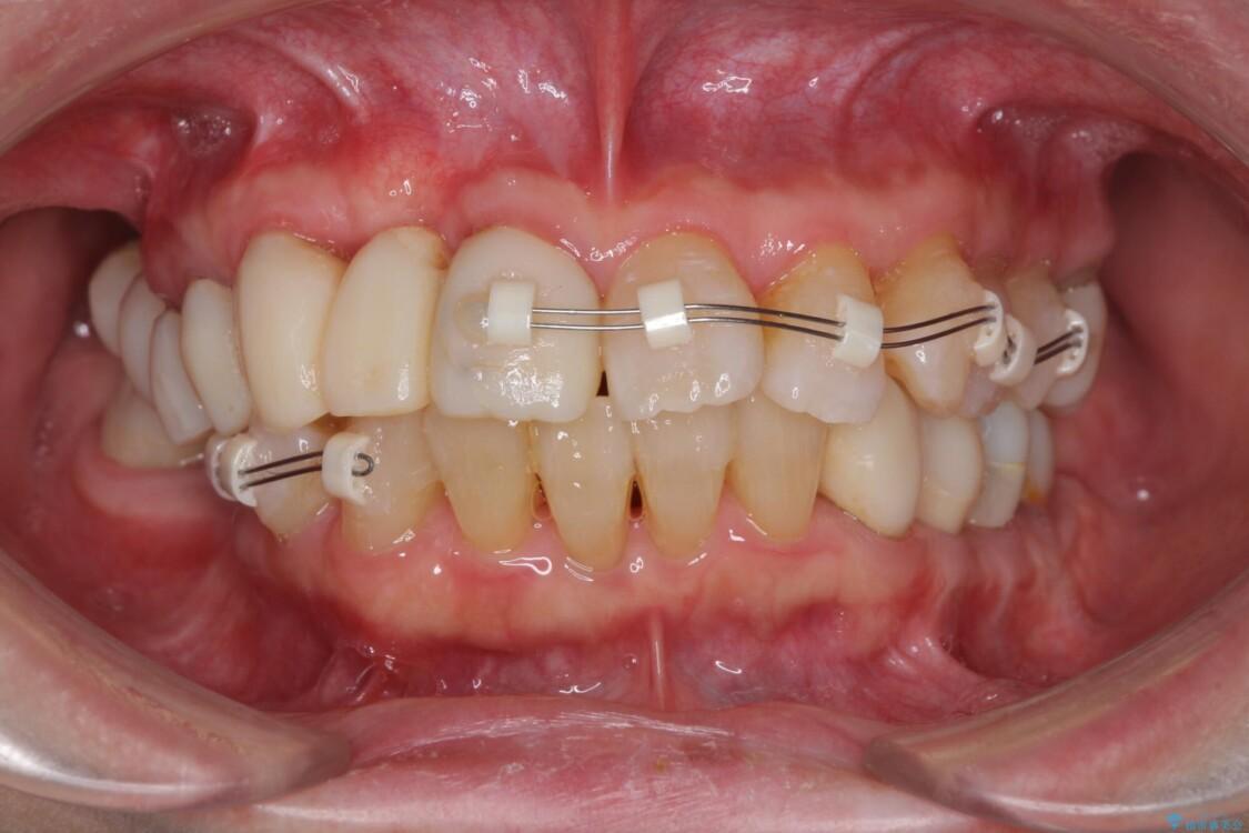 歯周病改善のための総合歯科治療 治療途中画像