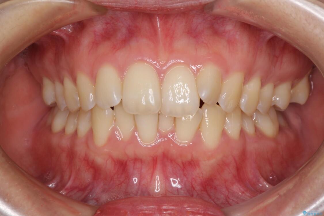前歯のデコボコを解消 インビザラインによる矯正治療 ビフォー