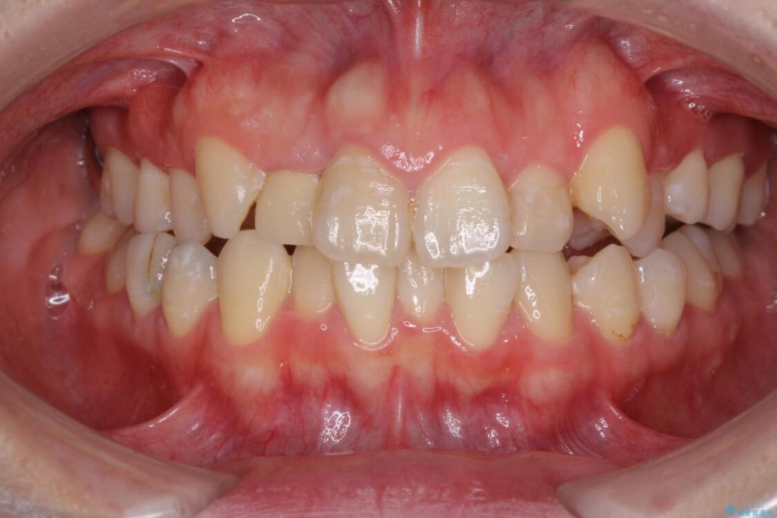 狭い上顎骨を拡大 インビザラインによる非抜歯矯正 ビフォー