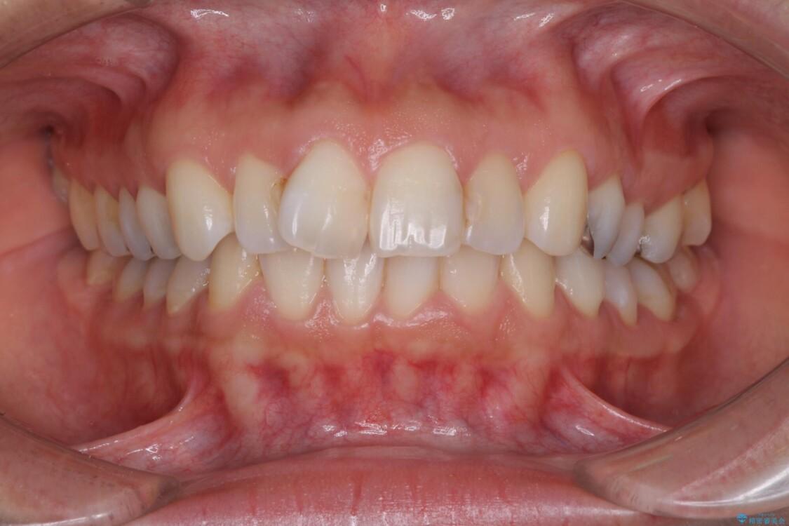 前歯の突出を軽減 インビザラインによる抜歯矯正 ビフォー