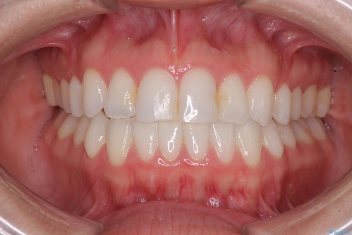 前歯のクロスバイトを治したい インビザラインによる矯正治療 アフター