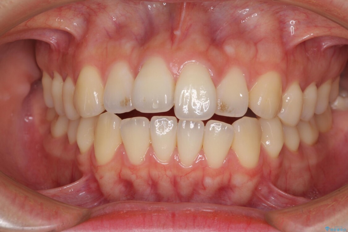 開咬でかみにくい インビザラインによる矯正治療 治療前