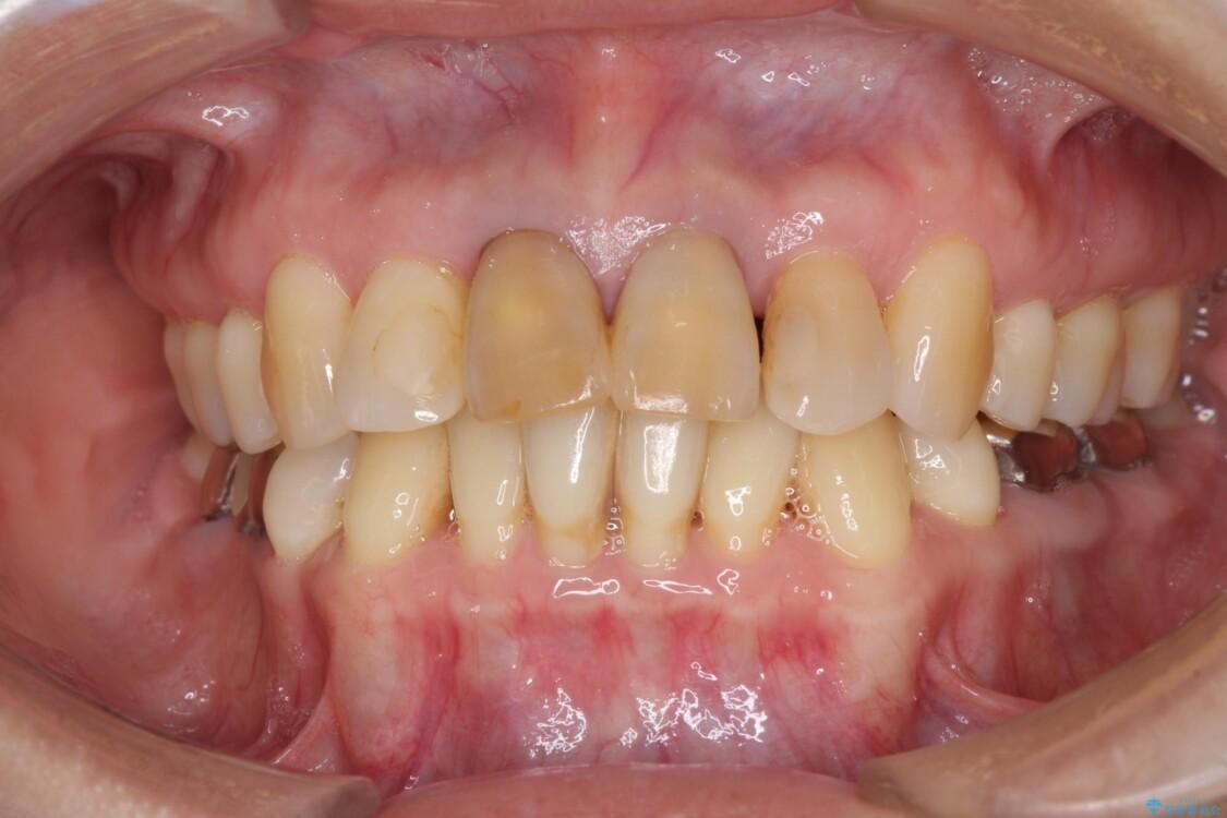 部分矯正とセラミック 前歯の審美治療 ビフォー