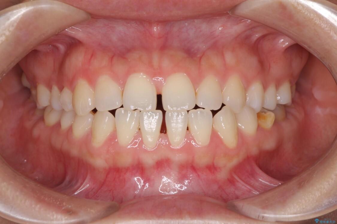 隙間の空いた前歯を治したい インビザライン矯正治療 ビフォー