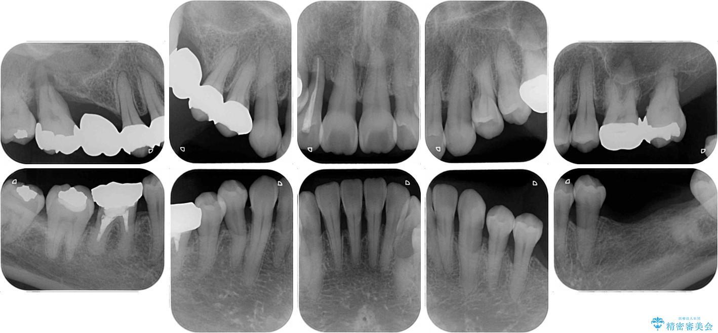 歯周病改善のための総合歯科治療 治療前画像
