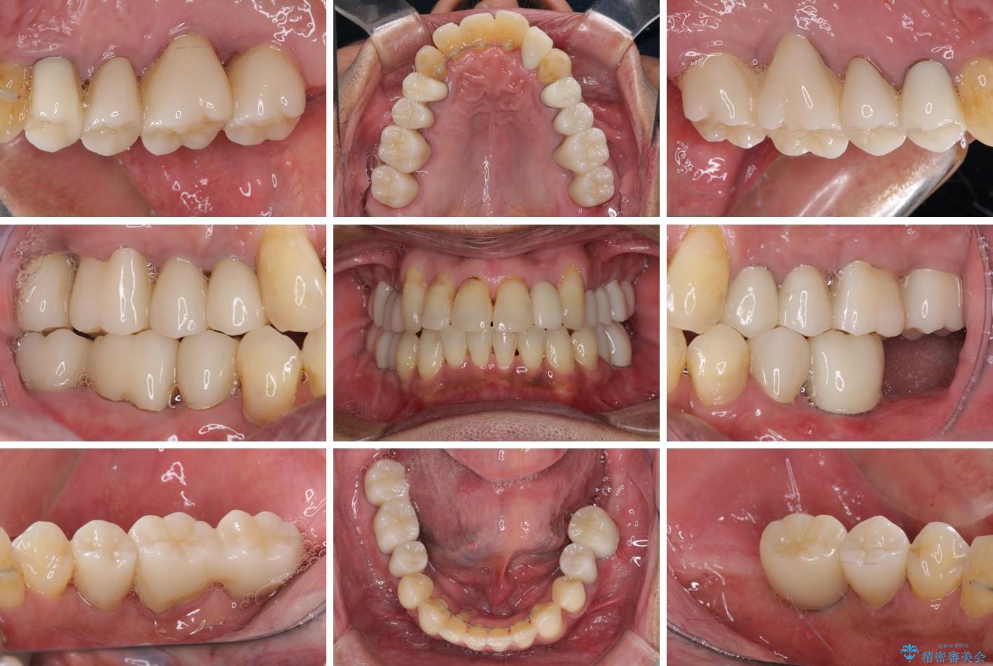 歯周病治療のための歯列矯正 総合歯科治療による全顎治療 アフター