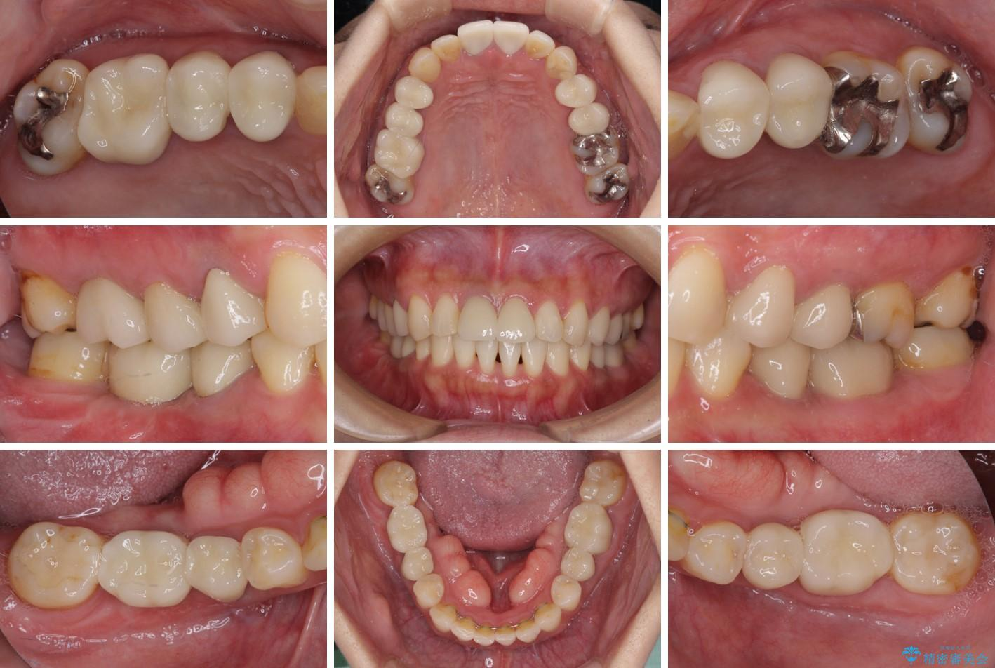 気になる部分を全て治療 総合歯科治療で口腔内環境改善 アフター
