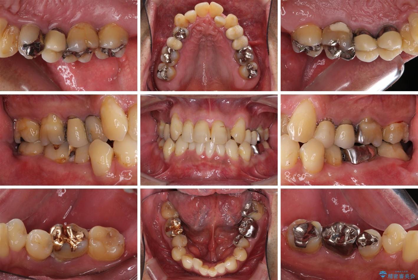 歯周病治療のための歯列矯正 総合歯科治療による全顎治療 ビフォー