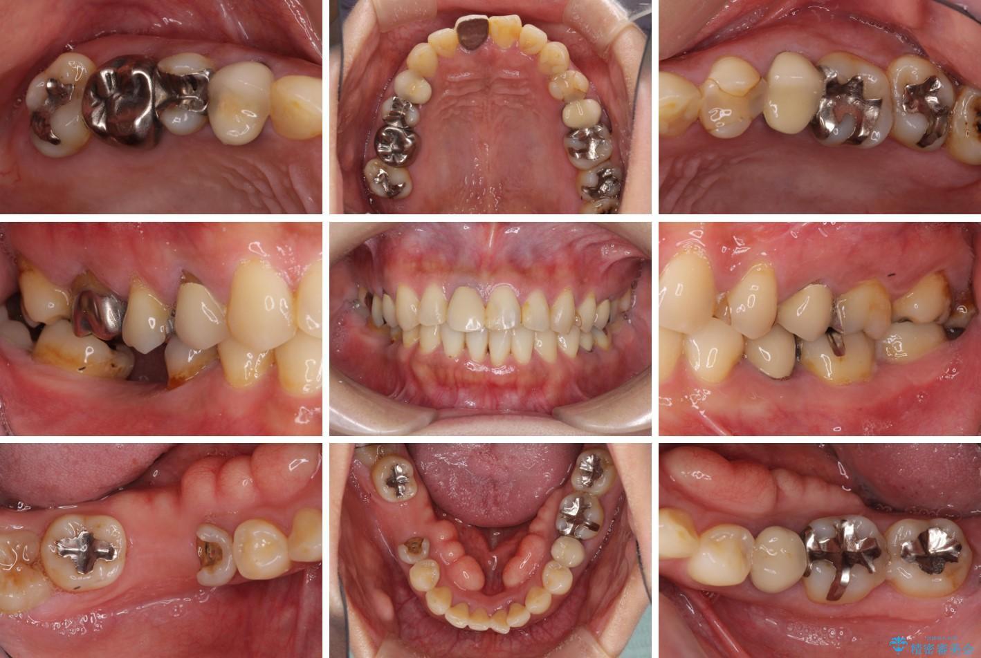 気になる部分を全て治療 総合歯科治療で口腔内環境改善 ビフォー