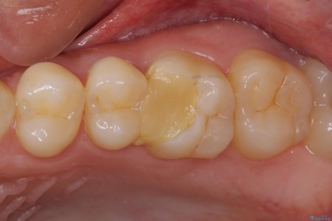 他院で神経を取ると言われた 神経を極力残した虫歯治療 ビフォー
