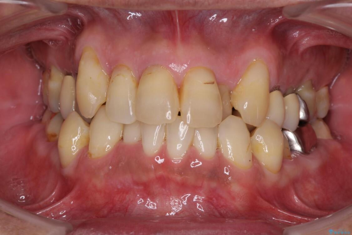 歯周病治療のための歯列矯正 総合歯科治療による全顎治療 治療前画像
