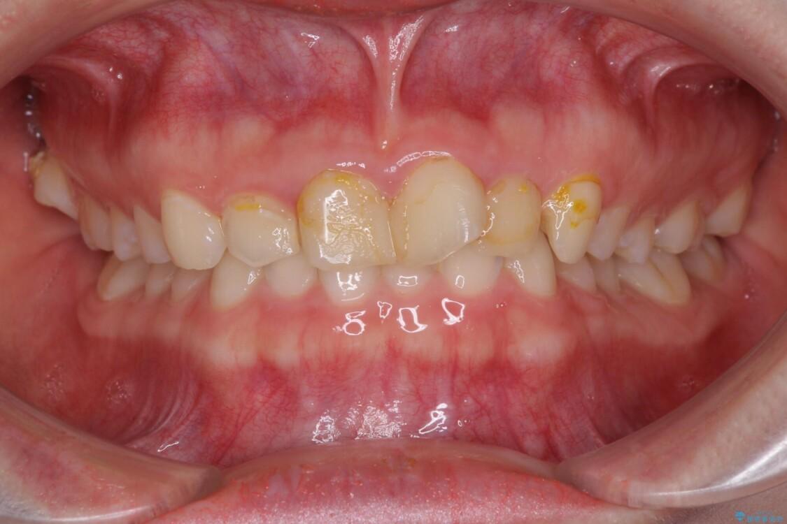 気になる前歯を美しく マウスピース矯正とセラミッククラウン ビフォー
