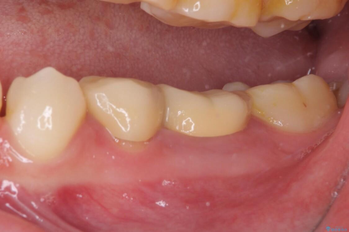 奥深くまでの虫歯で歯茎が腫れる 部分矯正を用いた治療 ビフォー