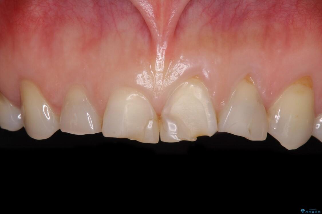 ガタガタの前歯をオールセラミッククラウンで自然な口元へ ビフォー