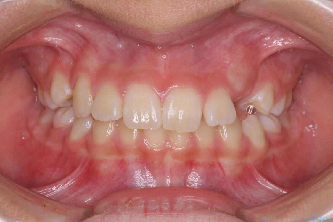 埋もれた犬歯を引っ張り出す 小学生のⅠ期治療 ビフォー