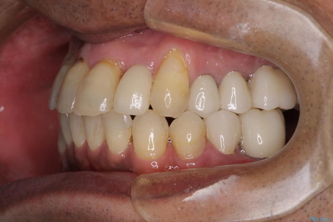 歯周病治療のための歯列矯正 総合歯科治療による全顎治療 治療後画像
