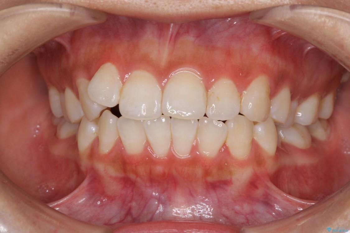 前歯のデコボコが気になる インビザラインによる矯正治療 治療前