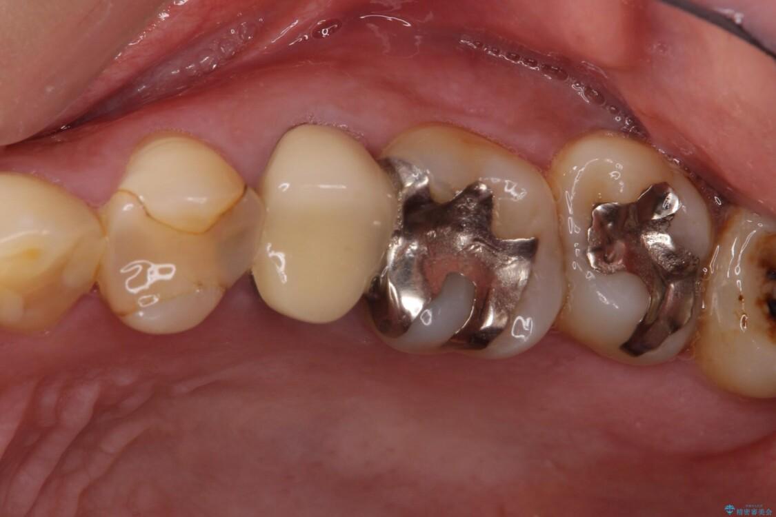 気になる部分を全て治療 総合歯科治療で口腔内環境改善 治療前画像