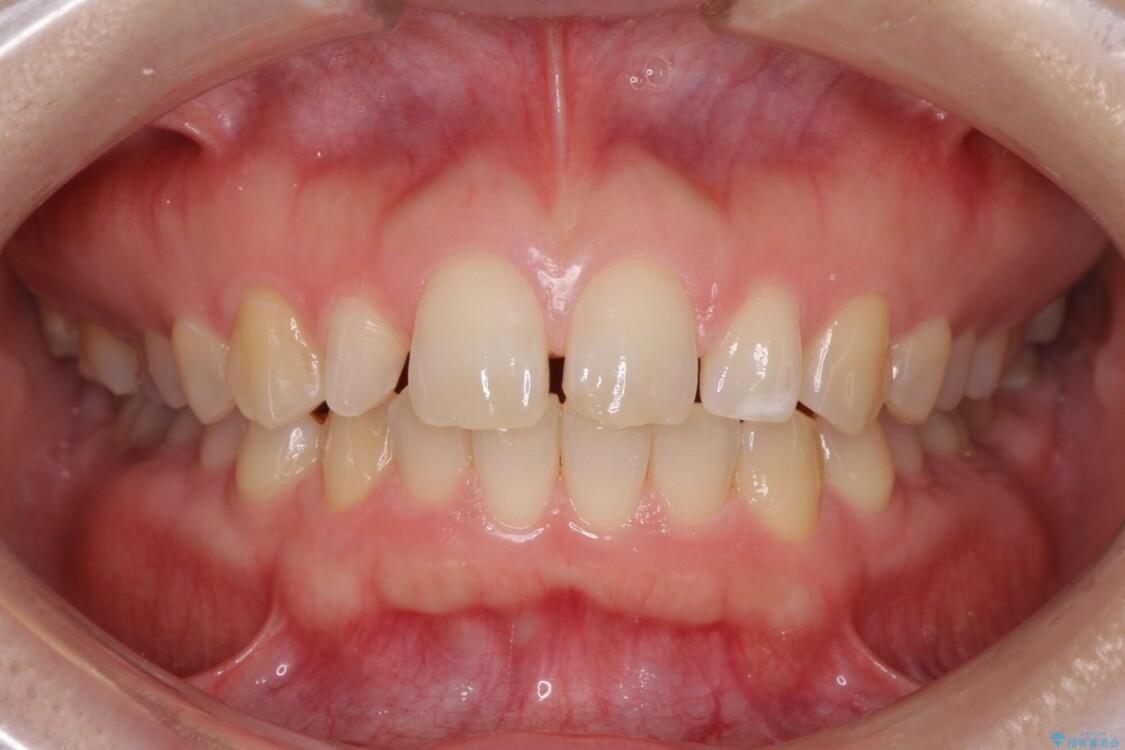 前歯の歯並びと小さい歯を改善 インビザラインとオールセラミッククラウン ビフォー
