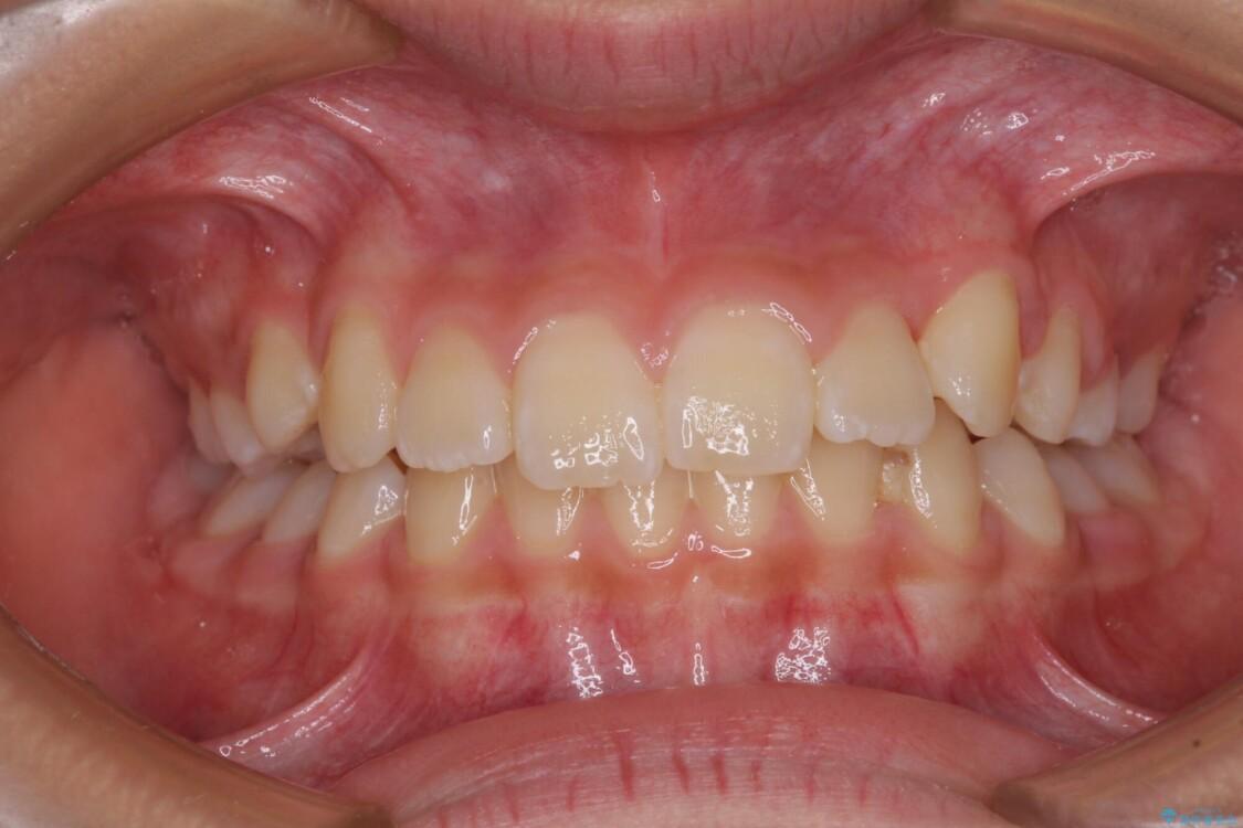 埋もれた犬歯を引っ張り出す 小学生のⅠ期治療 アフター