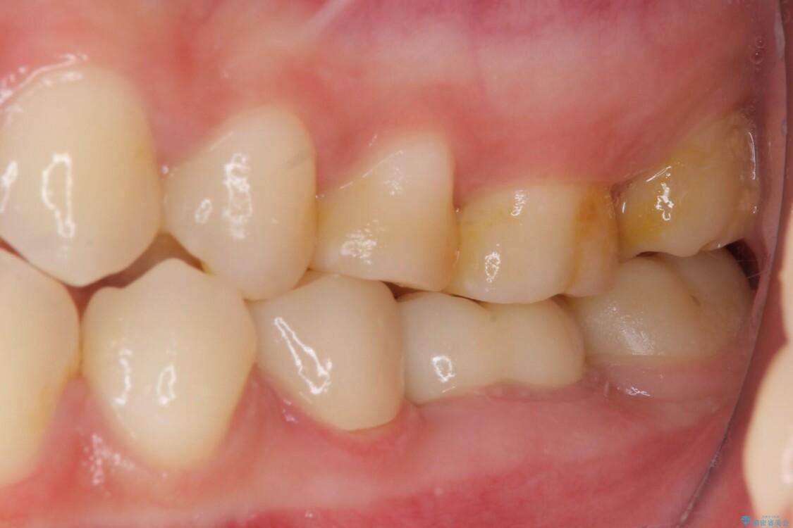 奥深くまでの虫歯で歯茎が腫れる 部分矯正を用いた治療 アフター