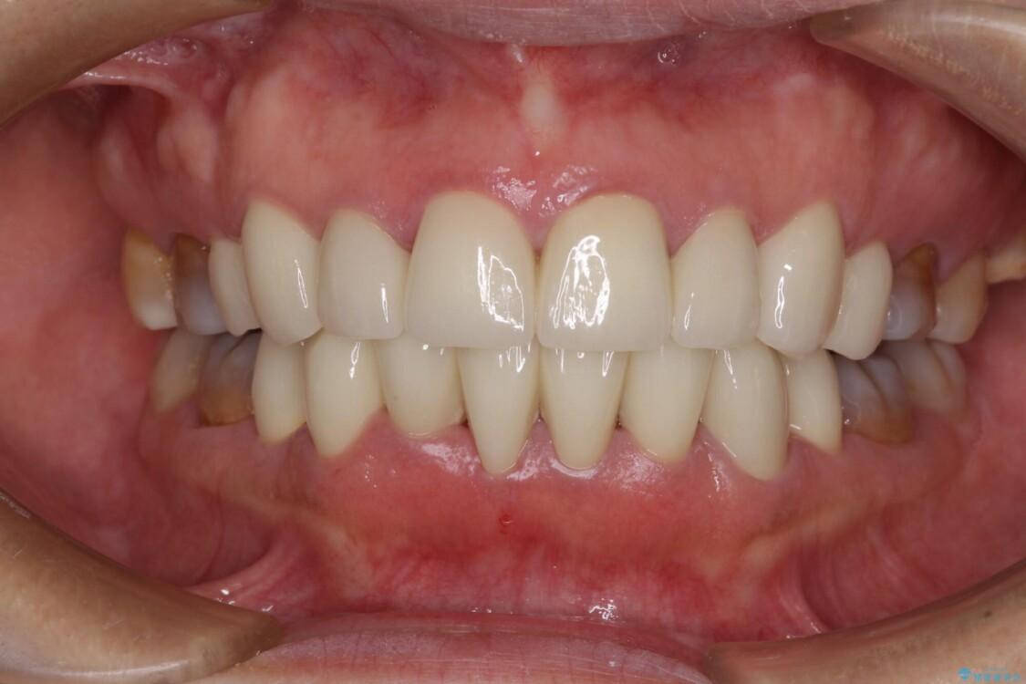 矯正の後戻りと変色歯を治したい 総合歯科診療 アフター