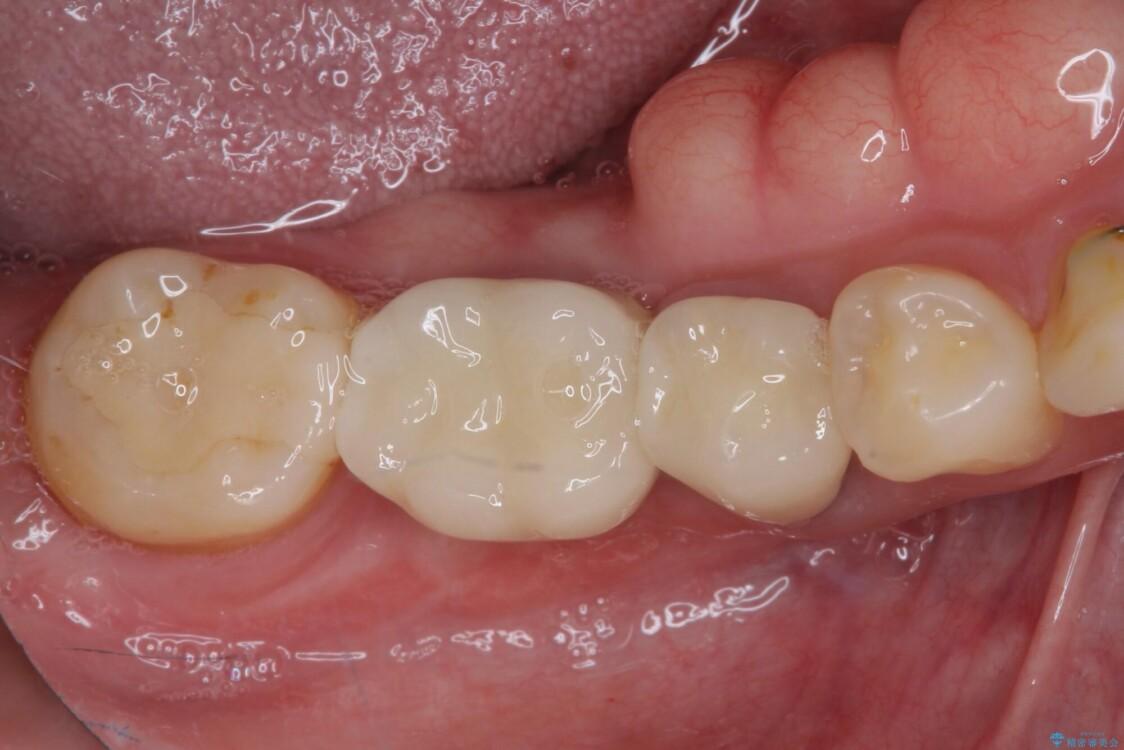 気になる部分を全て治療 総合歯科治療で口腔内環境改善 治療後画像