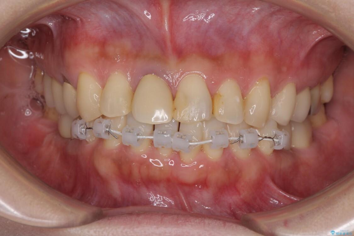 気になる部分を全て治療 総合歯科治療で口腔内環境改善 治療途中画像