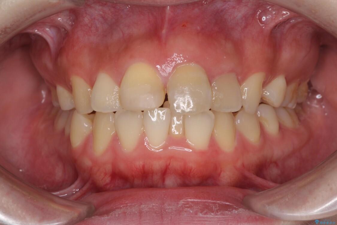 抜歯矯正の後戻り インビザラインによるオープンバイトの再矯正 治療前