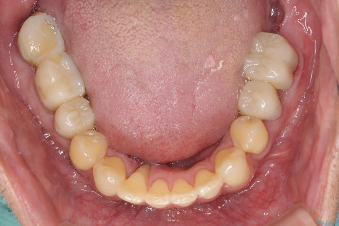 歯周病治療のための歯列矯正 総合歯科治療による全顎治療 治療途中画像