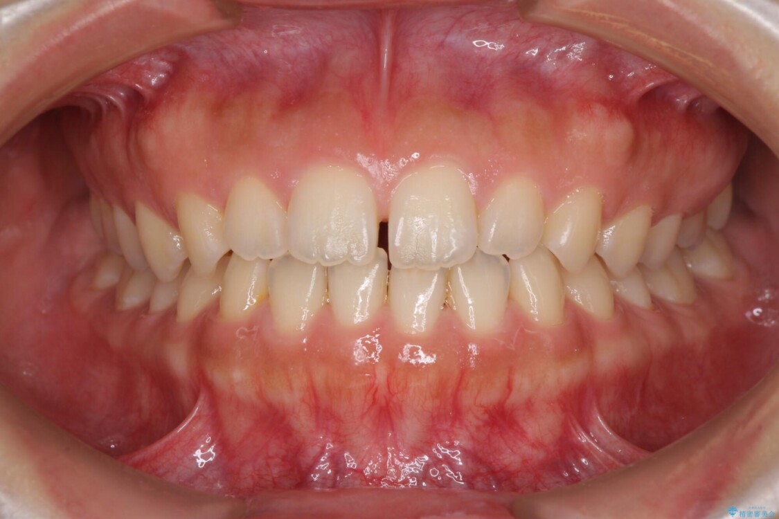 気になる隙間の再矯正 前歯をインビザライン・ライトで改善 ビフォー