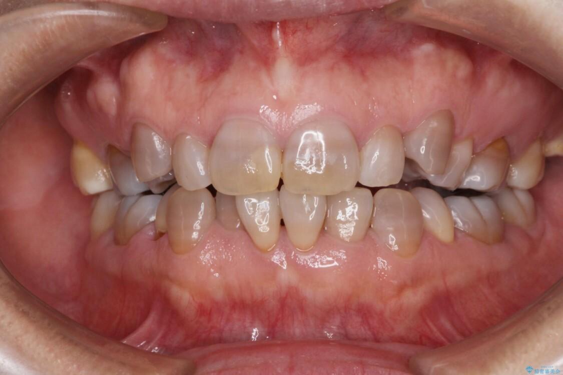 矯正の後戻りと変色歯を治したい 総合歯科診療 ビフォー