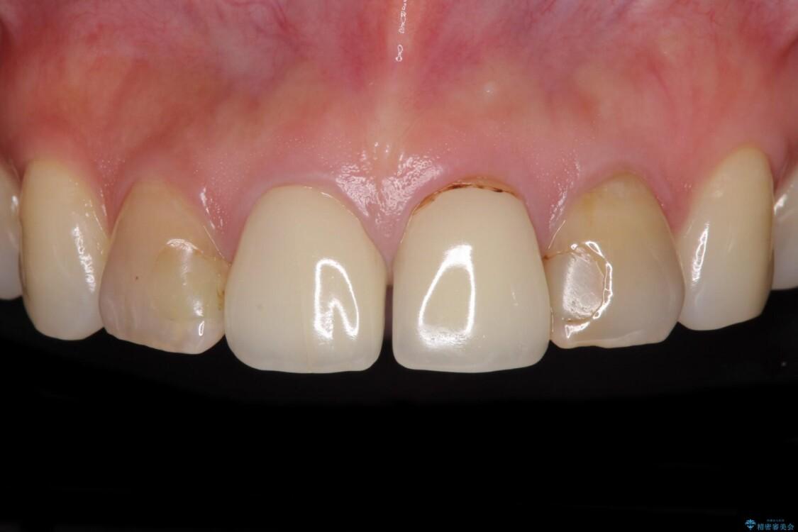 変色した歯をセラミックできれいに整える ビフォー