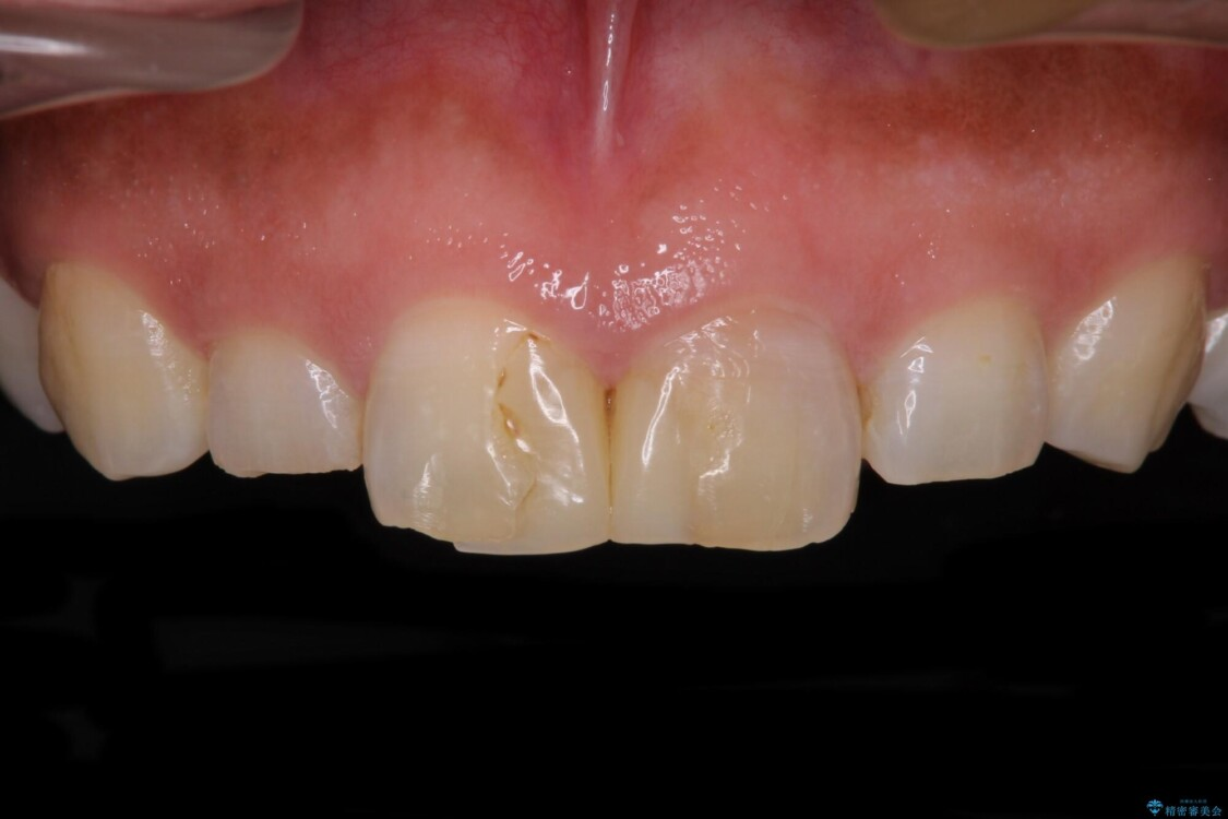 前歯の気になる変色、長さを整えてオールセラミッククラウンに ビフォー