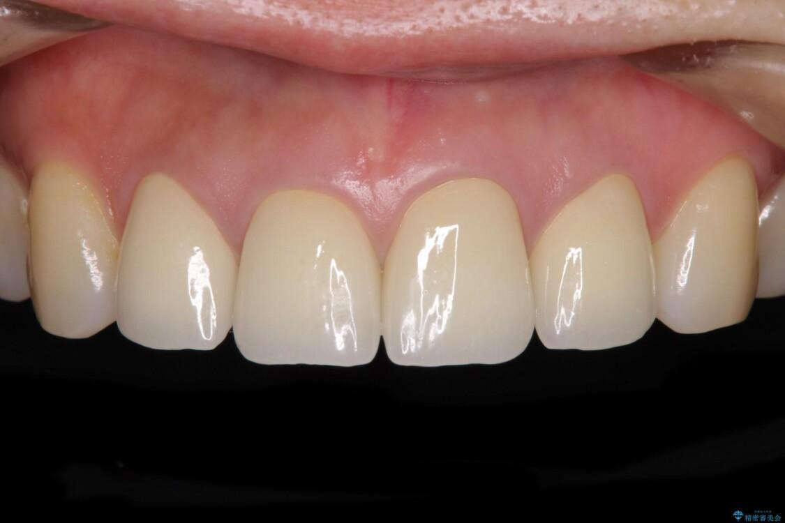 変色した歯をセラミックできれいに整える アフター