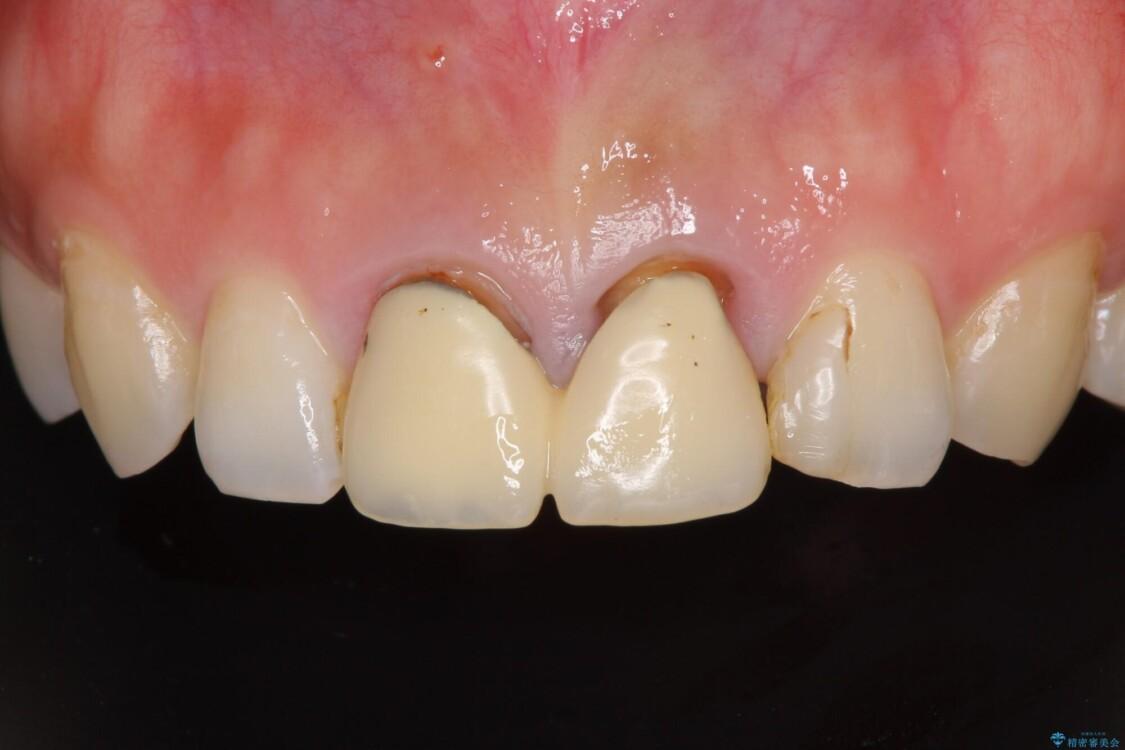 変色した前歯のクラウン オールセラミッククラウンにより審美歯科治療 ビフォー