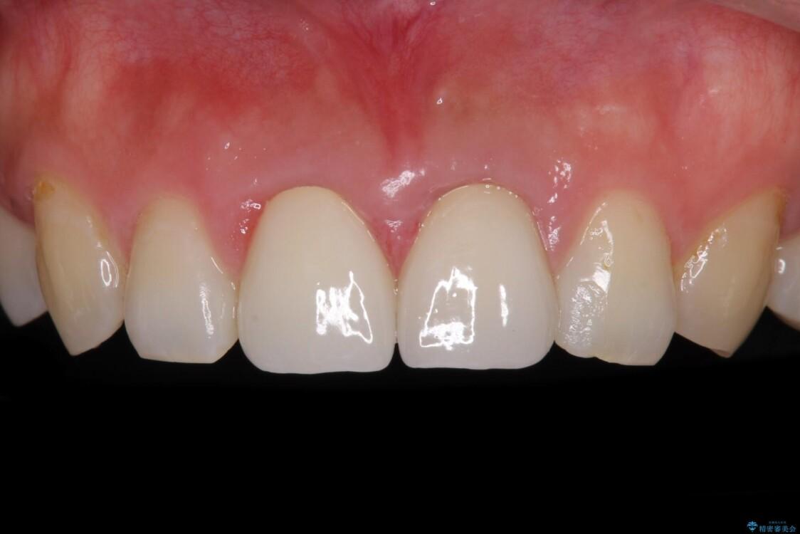 変色した前歯のクラウン オールセラミッククラウンにより審美歯科治療 アフター
