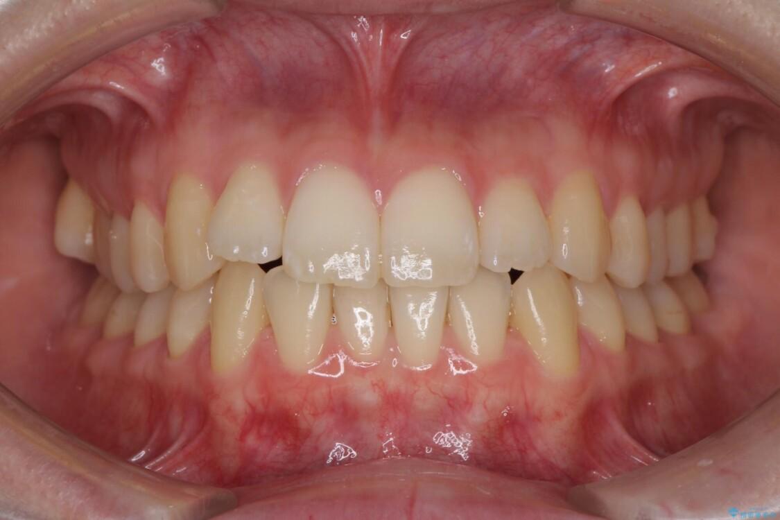 前歯の微妙なガタつきが気になる インビザライン・ライトでの矯正治療 ビフォー