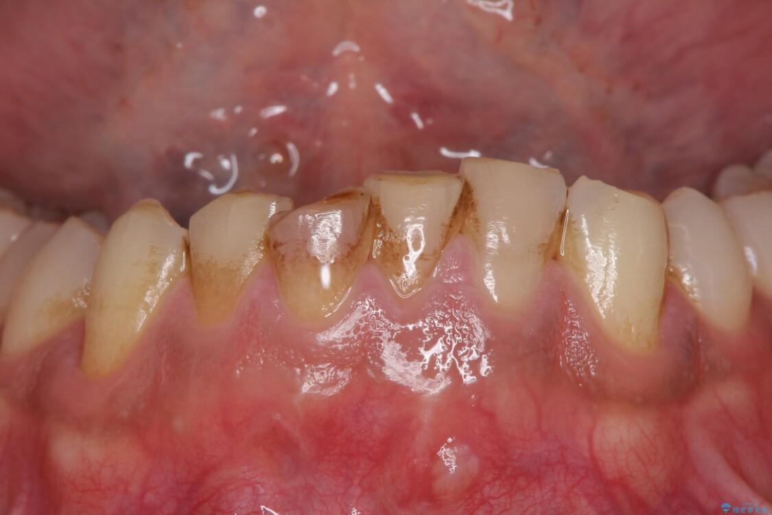 強い咬み合わせで削れた前歯 セラミッククラウンで自然な形に 治療前