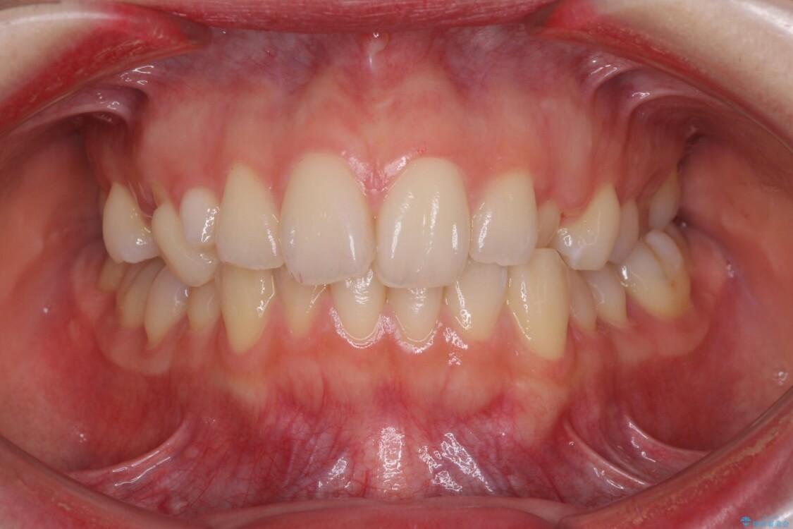 狭い上顎骨を拡大 急速拡大装置を併用したインビザライン矯正 ビフォー